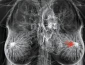 Три ошибочных мифа о маммографии
