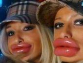 Учёные выяснили, когда «накачанные» губы становятся некрасивыми