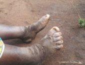 Ученые раскрыли секрет распространения загадочной эпидемии «слоновой болезни» в Уганде