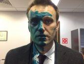 У Навального после нападения химический ожог глаза