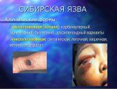 Роспотребнадзор предупредил россиян о случаях заболевания сибирской язвой на курортах Италии