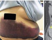 Женщина сломала себе ребро во время кашля (фото)
