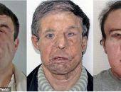Мужчина с тремя лицами: Французу сделали вторую пересадку лица